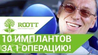 Операция имплантации. 10 имплантов ROOTT на нижнюю челюсть за 3 дня! Операция по имплантации зубов