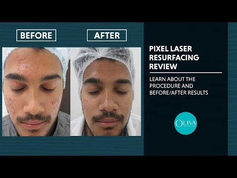 laser-skin-resurfacing-treatment:-procedure,-reviews-and-results