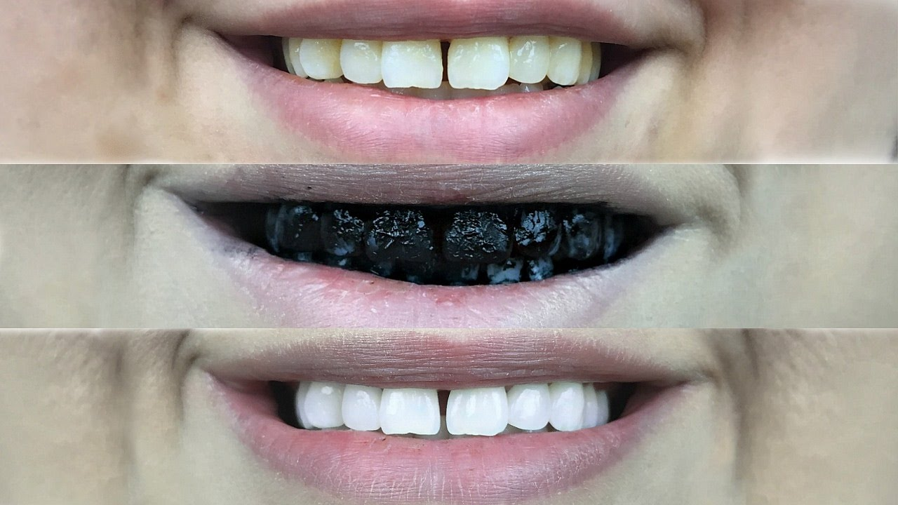 how to make your yellow teeth white naturally