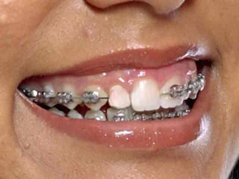 Remove braces with photoshop youtube remove braces with photoshop solutioingenieria Images