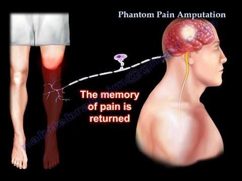Phantom Pain Amputation - Everything You Need To Know - Dr. Nabil Ebraheim