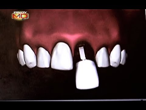 Bungi ka ba? Magpa-dental implants na!