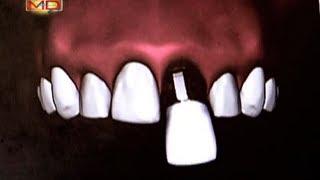 Bungi ؟ تكون زراعة الأسنان بالفعل!