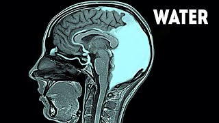 This Woman Drank 21 Liters of Water in 24 Hours. This is What Happened to Her Brain...