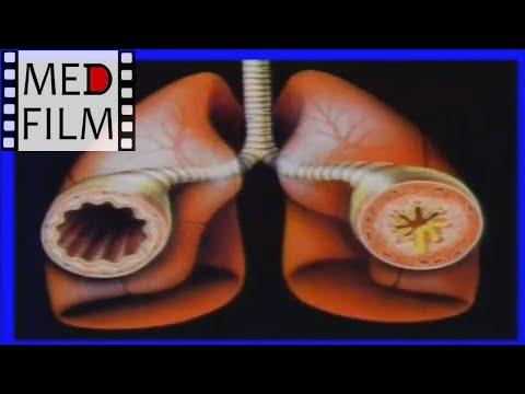 Бронхиальная астма - симптомы, лечение, профилактика