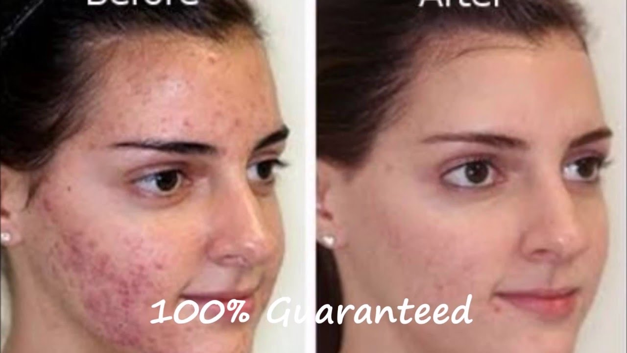 Acne Home Remedies Acne Home Remedies Is The Best Acne Treatment