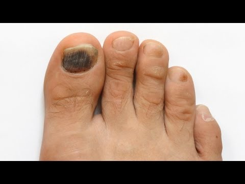 How to Prevent Toenail Fungus | Foot Care
