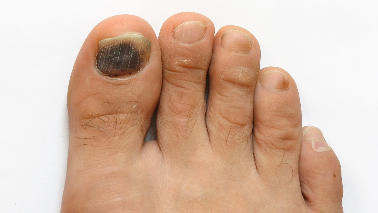 How to Prevent Toenail Fungus | Foot Care - YouTube