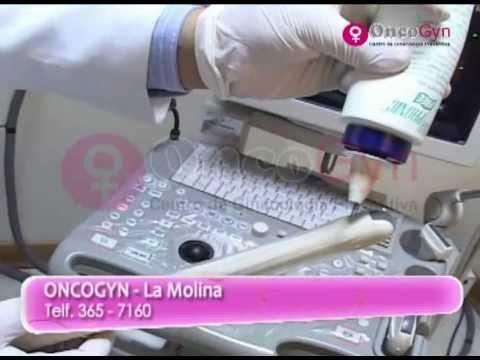 Ultrasonido vaginal mujer soltera