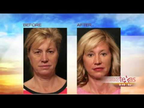 Dr. Toledo discusses Face and Neck Lifts, Forehead Lift and Eyelid Surgery