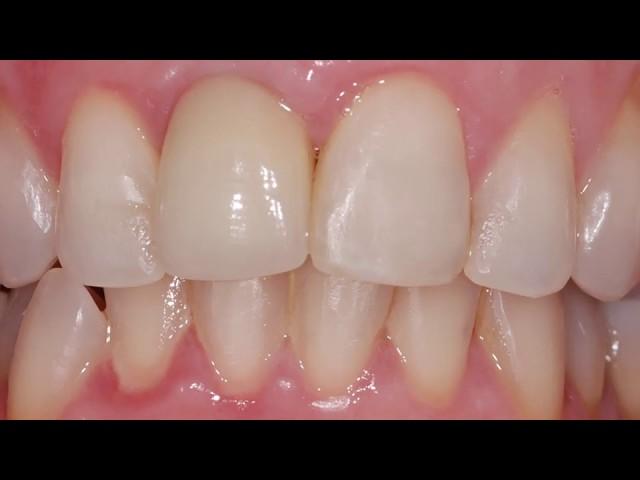 Estética com Enxerto e Implante dentário- Faça você também