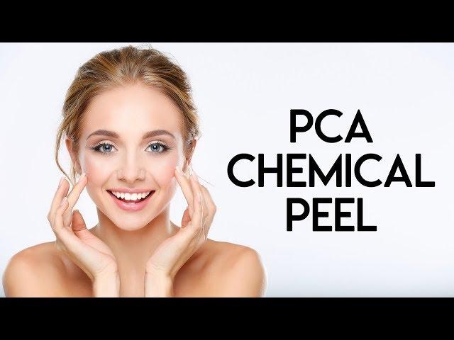 PCA Chemical Peel