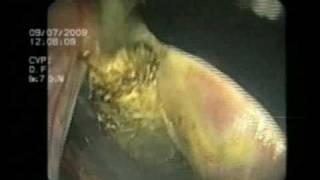 Лапароскопия: операция уделения желчного пузыря(Лапароскопическая операция удаления желчного пузыря. Хирург Пучков Константин., 2008-11-11T09:11:16.000Z)