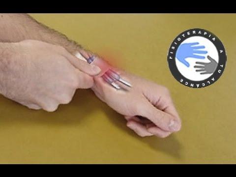 Como se cura una tendinitis en la muneca