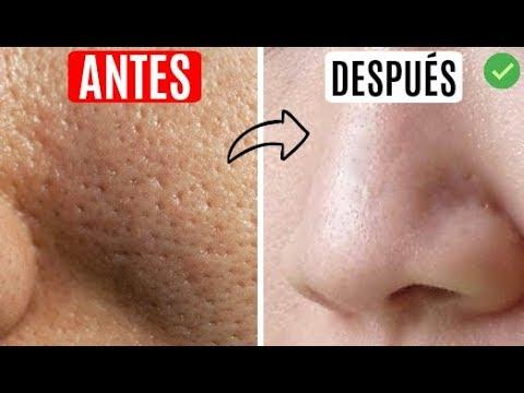 Elimina Los Poros Abiertos L Remedio Casero L Kariniwiii Youtube