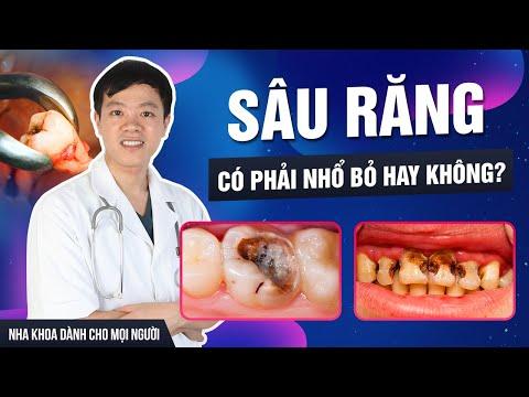 Răng sâu nên xử lý thế nào?
