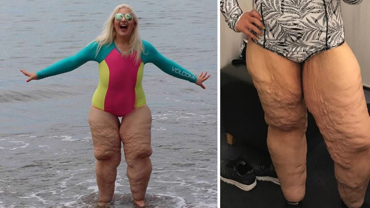 People made fun of her legs, but she showed the photo closer and closed her mouth