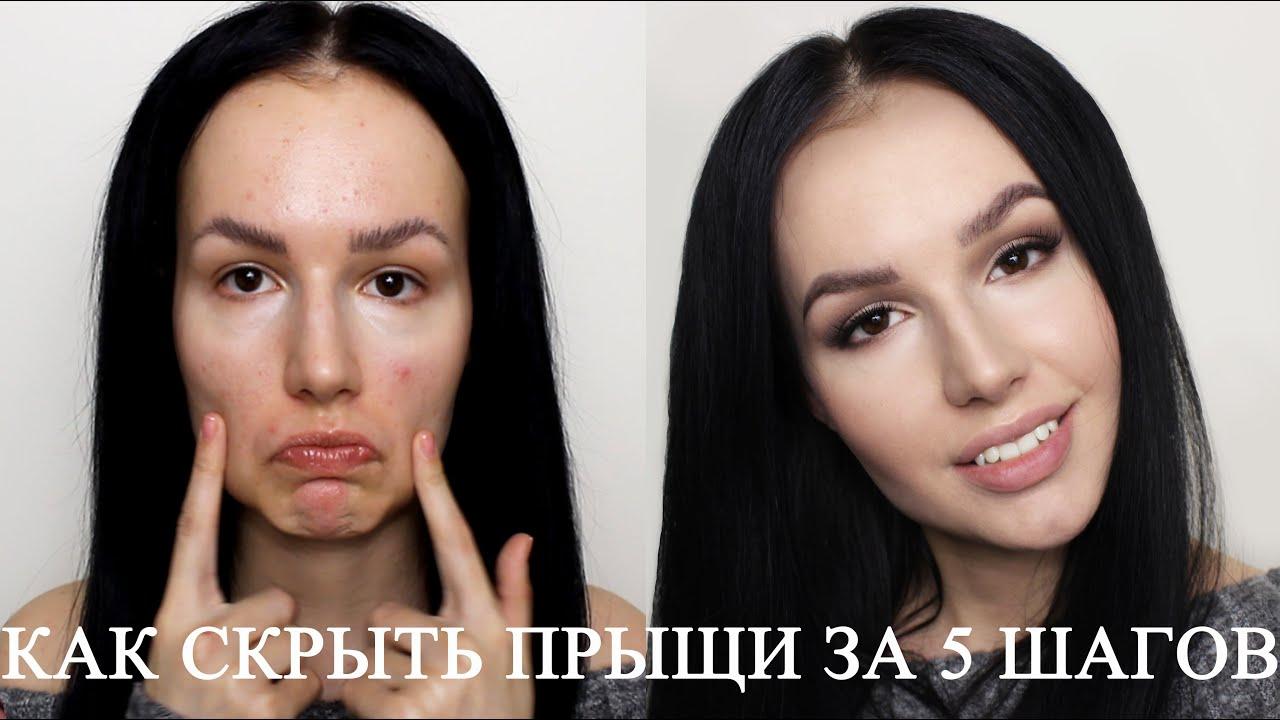Как замаскировать прыщи при помощи косметики