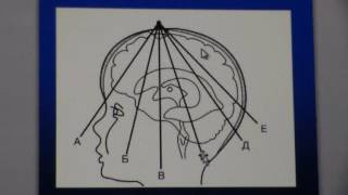 Сонография головного мозга у детей
