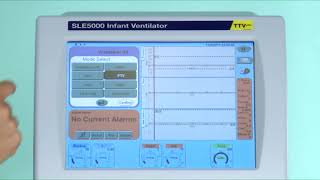SLE5000 | 4. Modes of Ventilation