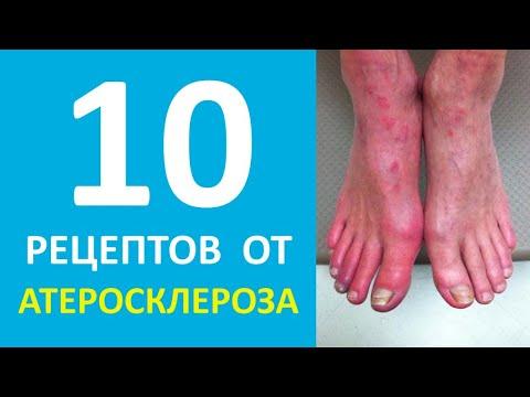 Атеросклероз нижних конечностей лечение | А рецепт?