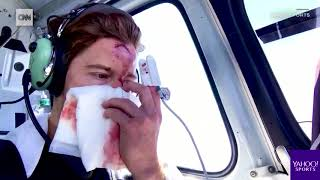 Shaun White Crash Video 2018 X Games Olympics Crazy 62 Stitches On His Face WOW!