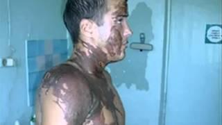 дело по факту химического ожога в Приморье(, 2012-10-09T07:17:52.000Z)