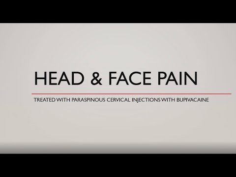 Cure For Facial Pain - Watch This Sphenopalatine Ganglion Block Injection.