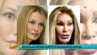 Bahaya silikon bagi kecantikan sudah dirasakan oleh Mpo Atiek, tak memperoleh kecantikan yang di ida.