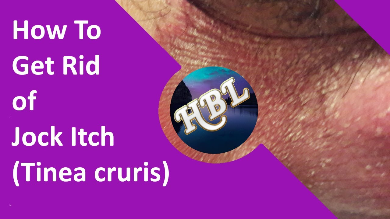 How to Get Rid of Jock Itch (Tinea Cruris): Some Natural Remedies