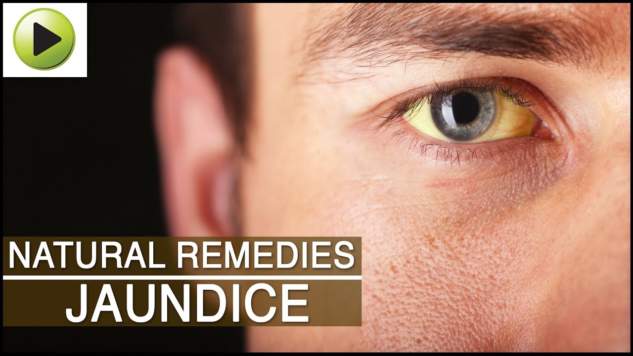 Adult jaundice cause and treatment