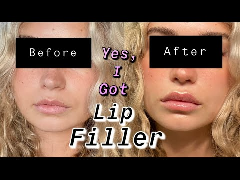 FIRST TIME GETTING LIP FILLER IN LOS ANGELES: FULL PROCESS
