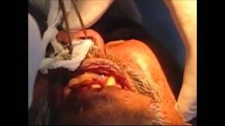 Anterior Nasal Packing in Horizontal Layers
