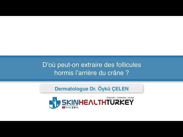 Greffe de cheveux Turquie – D'où peut-on extraire des follicules hormis l'arrière du crâne?