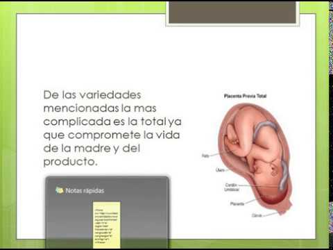 Placenta previa anatomy and physiology