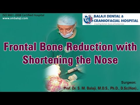 Frontal bone reduction with shortening the nose - Dr. S.M Balaji