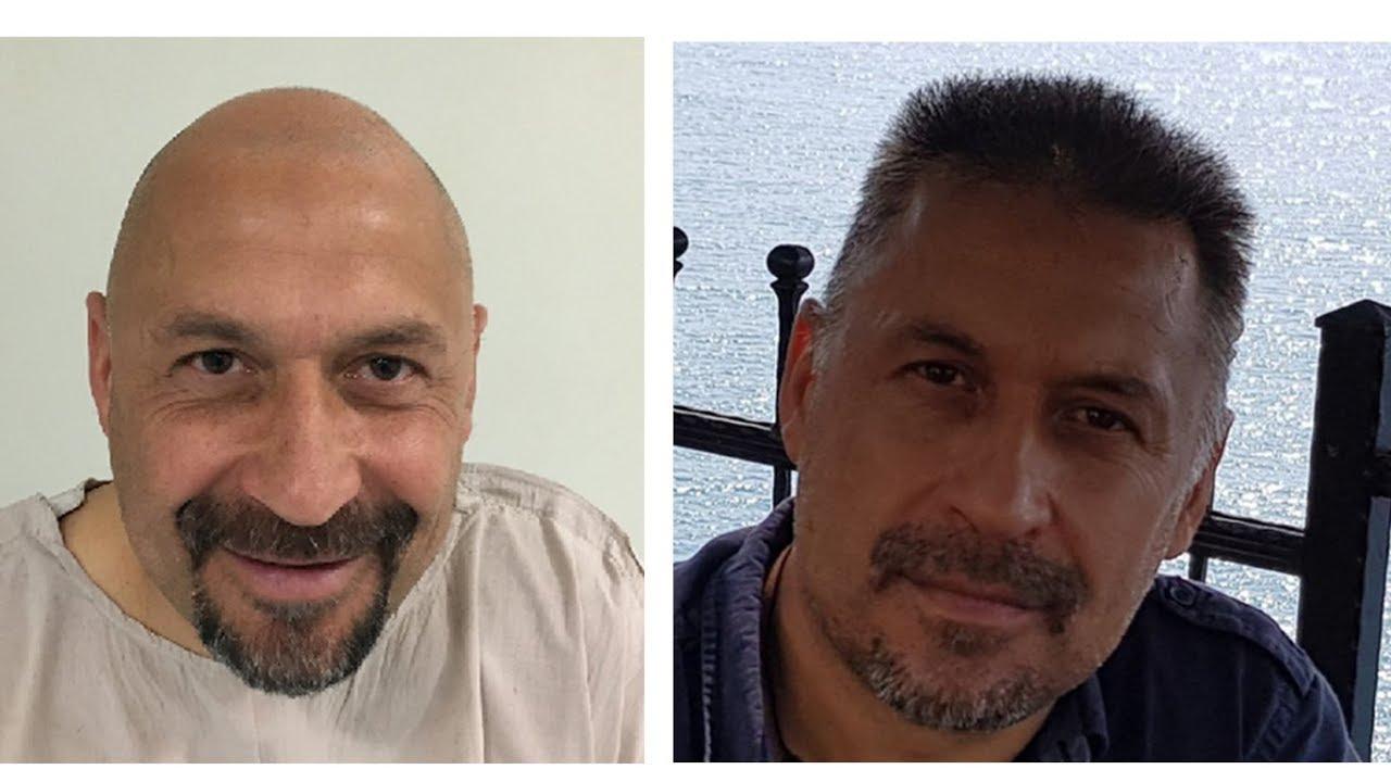 Saç Mezoterapisi Öncesi ve Sonrası,Fiyatları Nelerdir