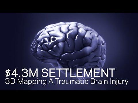 $4.3M Settlement: - 3D Mapping a Traumatic Brain Injury