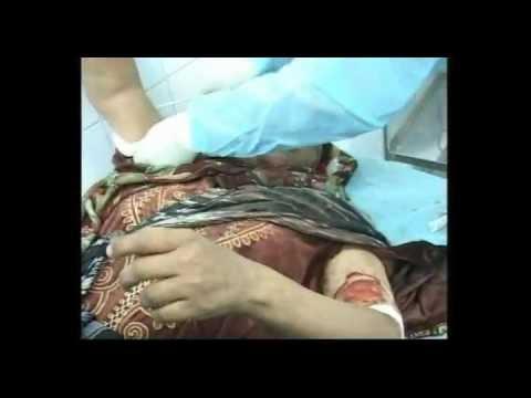 NATO Bombing civilians in Brega (1), 03.2011, NATO Crimes In Libya
