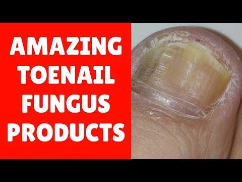 3 Amazing ToeNail Fungus Treatment Products