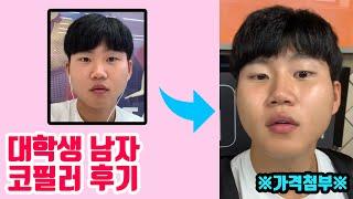 [가을별] 남자 코필러 후기 / 대학생 코필러 후기 (…