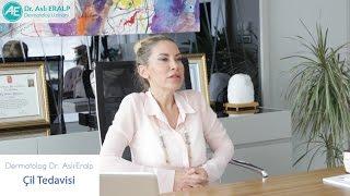 Lazerle Çil Tedavisi - Dermatolog Dr. Aslı Eralp