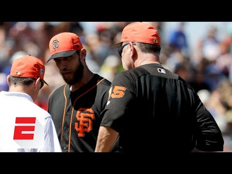 Madison Bumgarner could miss 68 weeks with broken bone in hand after being hit  line drive  ESPN