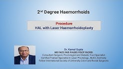 2nd Degree Haemorrhoids