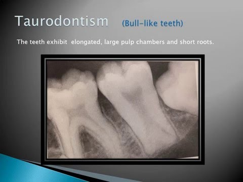 Radiographic Interpretation of Dental Anomalies Part 1