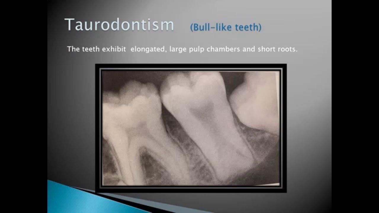 Radiographic Interpretation of Dental Anomalies Part 1 - YouTube