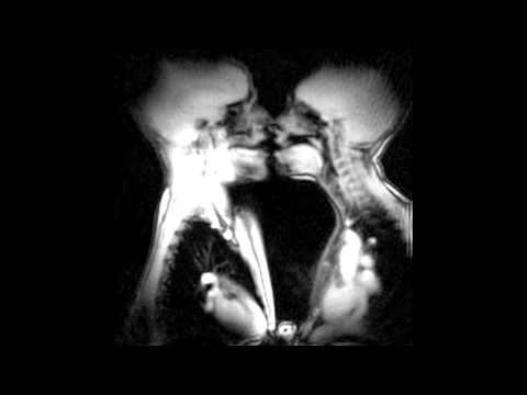 The anatomy of kissing and love in magnetic resonance imaging (MRI) scanner