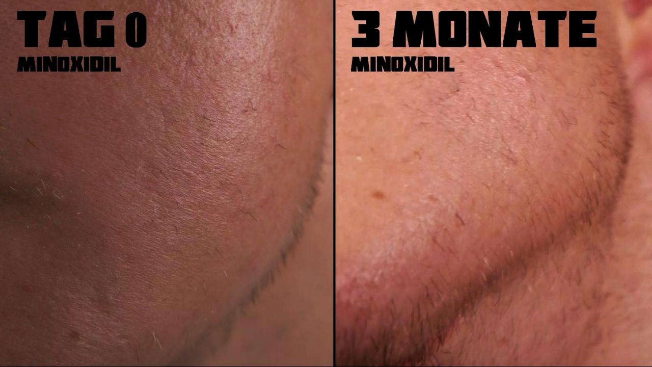 minoxidil bart