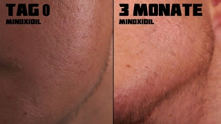 Beard Transformation nach 3 Monaten | Minoxidil | 4K