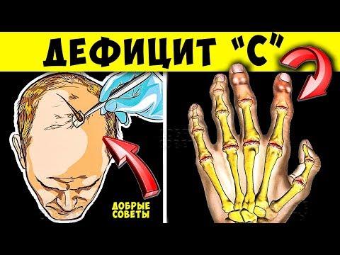 Симптомы Острого Дефицита Витамина C, что делать...